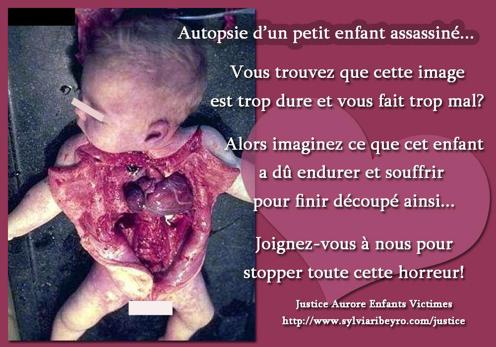 autopsie 1